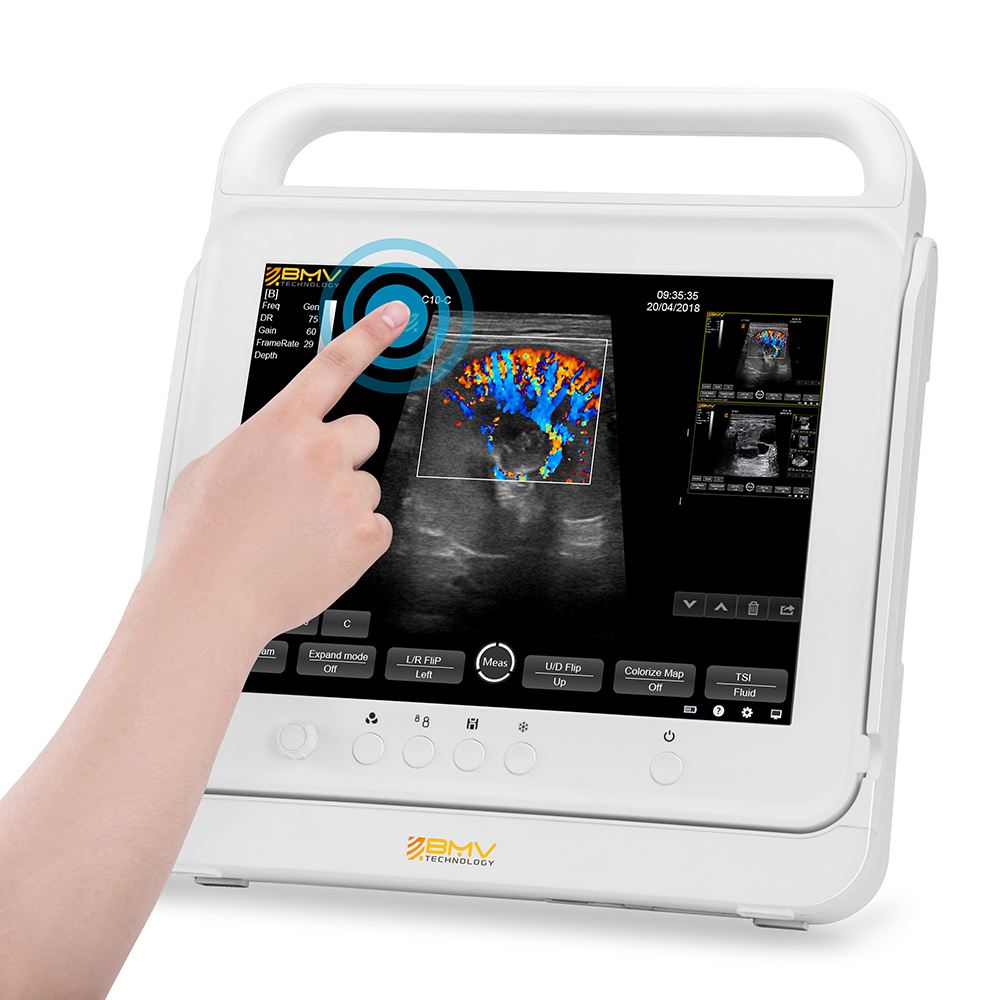 Early Pregnancy Ultrasound, Anesthesia and Monitoring   BMV