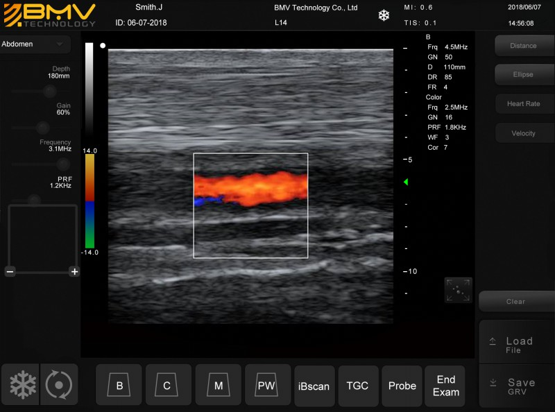 PT60 equine distal limb colour doppler
